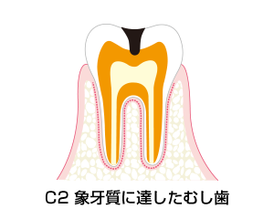 C2-象牙質に達したむし歯