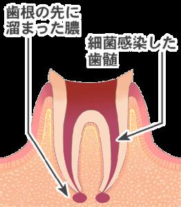 根管治療フロー1